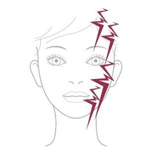 Trigeminus Neuralgie Schmerz-Bereiche